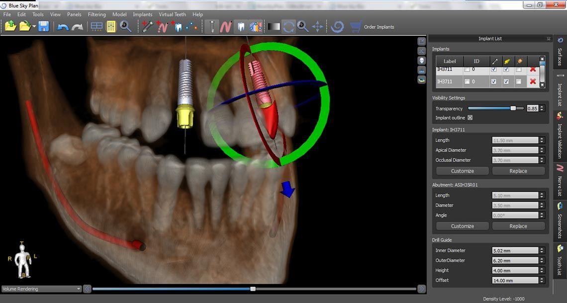 Implantología digital Clínica Dental Vicente Ferrer