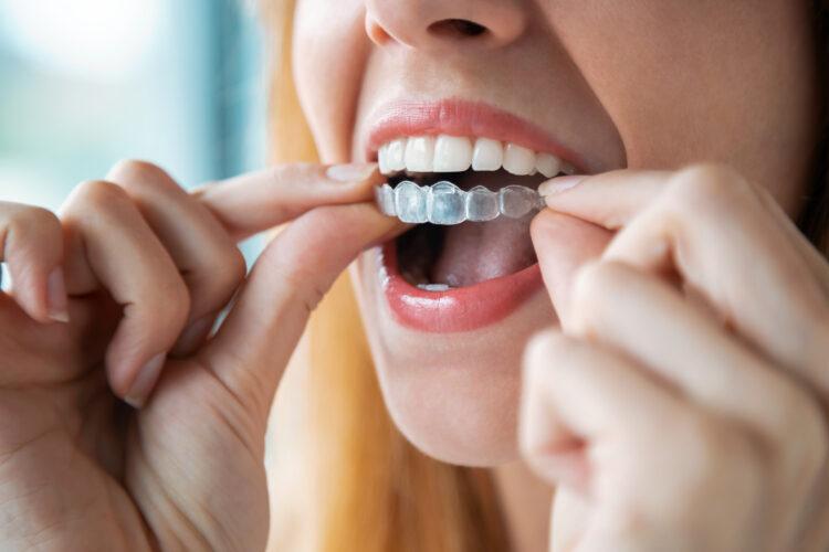 mitos ortodoncia invisible