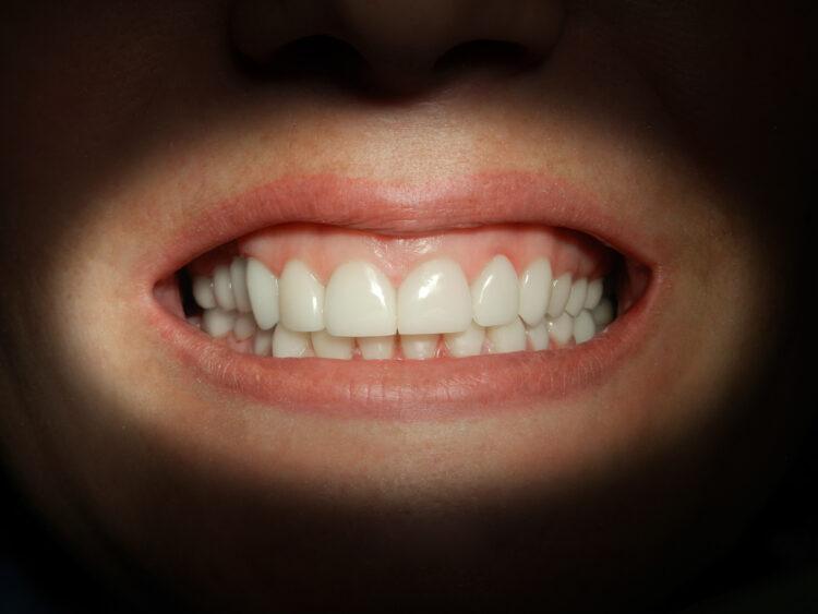 Clínica dental en Alcantarilla