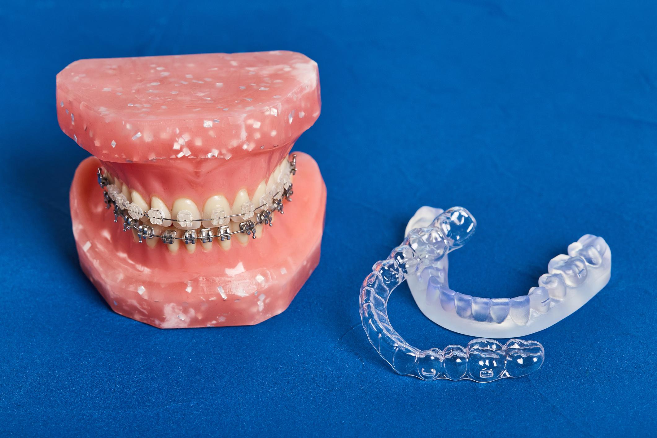 ortodoncia en Alcantarilla